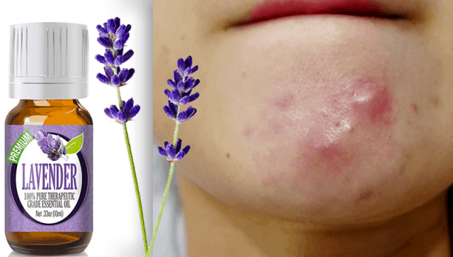 LAVENDER-ESSENTIAL-OIL-FOR-CYSTIC-ACNE-SKIN-TREATMENT